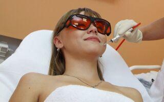 Методы удаления купероза на лице