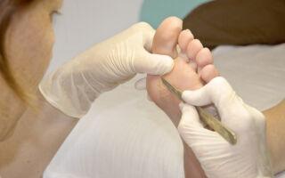 Причины появления подошвенной бородавки на ноге и его удаление