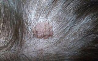Виды фибром на голове и выбор метода лечения