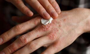 Методы лечения сухой экземы