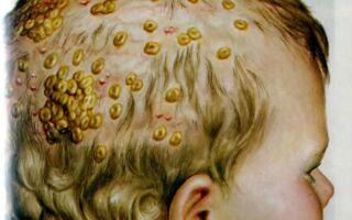 Симптомы и лечение фавуса