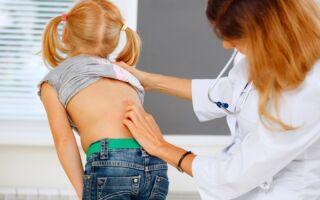 Причины развития и лечение опоясывающего герпеса у детей