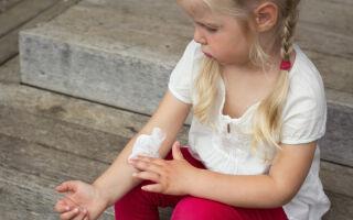 Проявление лишая у детей и как быстро его вылечить