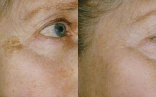 Эффективные способы борьбы с пигментными пятнами на лице