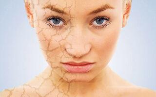 Что такое ангидроз и его терапия