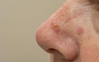 Причины образования и способы удаления базалиомы кожи носа