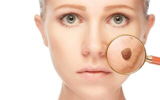 Чем опасно появление бородавок на лице?