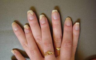 Самые эффективные способы лечения грибка ногтей на руках в домашних условиях