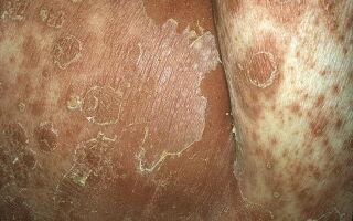 Виды пустулезного псориаза и их лечение