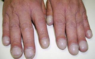 Основные заболевания ногтей на руках и ногах