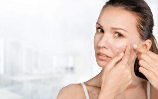 Возможные причины и лечение акне на лице во взрослом возрасте