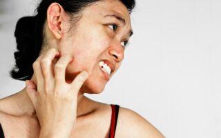 Чешется и покраснело лицо: каковы причины, как успокоить кожу