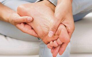 Причины и лечение зуда на подошве стопы