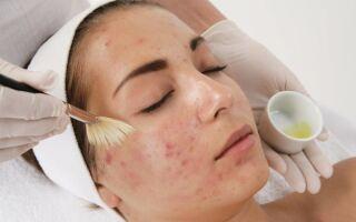 Причины развития демодекоза на лице, его лечение