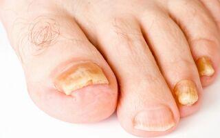 Распознаем грибок ногтей на ногах на начальной стадии