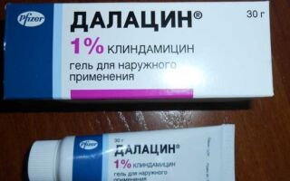 Очищение лица от прыщей препаратом Далацин