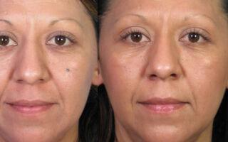 Как лучше избавиться от родимых пятен на лице