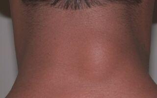 Причины появления липом на шее и их удаление