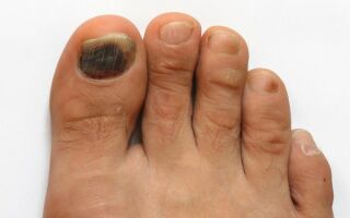 Что делать при появлении гематомы под ногтем пальца ноги