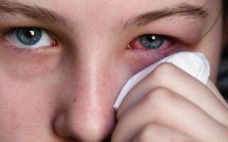 Почему отекают веки и зудит кожа вокруг глаз