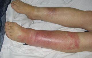 Как выглядит рожа на ноге, лечение воспаления