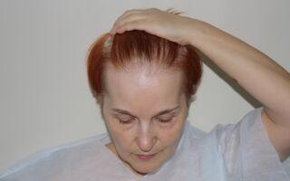 Способы лечения андрогенной алопеции у женщин