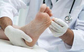 Какой врач занимается лечением грибка ногтей на ногах