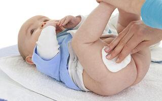 Симптомы и методы лечения пеленочного дерматита у грудничков в домашних условиях