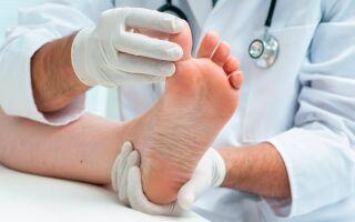 Причины повреждения ногтей при вирусах Коксаки
