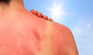 Что делать, если зудит кожа после солнечного ожога