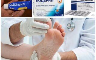 Выбираем средство от грибка ногтей на ногах