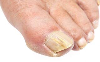 Эффективные способы борьбы с онихомикозом ногтей