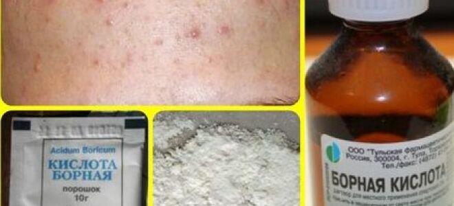 Рецепты средств против акне на основе борной кислоты