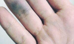 При каких болезнях происходит разрушение капилляров и образование синяков на руках