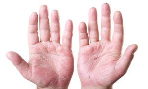 Почему после вируса коксаки облазит кожа