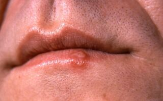Сбособы лечения неприятного образования на губе у детей и взрослых — фурункула