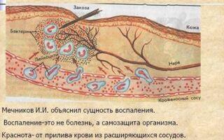 Виды экссудативного воспаления и терапия недуга