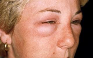 Симптомы отека Квинке, первая помощь, особенности лечения и профилактика