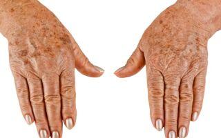 Как избавиться от пигментных пятен на руках