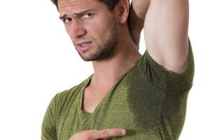 Причины и лечение гипергидроза у мужчин