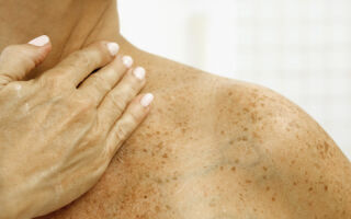Лечение пигментных пятен на теле