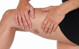 Что делать, если долго не проходит гематома на ноге