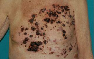 Причины рецидива меланомы и ее профилактика