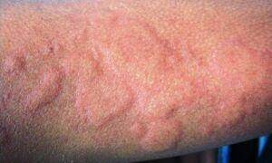 Диагностика и лечение уртикарного васкулита и его отличия от крапивницы