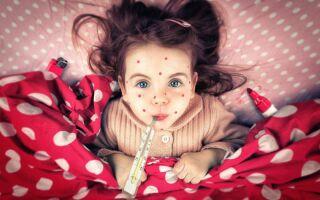 Проявление и лечение ветрянки у детей