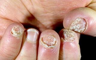 Терапия псориаза ногтей