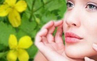Эффективные рецепты с чистотелом при лечении угревой сыпи