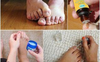 Быстрое и эффективное лечение грибка ногтей