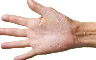 Как быстро и эффективно избавиться от микоза кистей в домашних условиях