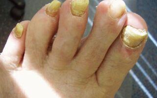 Почему увеличивается толщина ногтя и как вылечить недуг